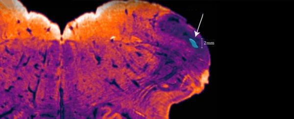 Австралийские ученые обнаружили у человека новый участок мозга, которого нет у животных