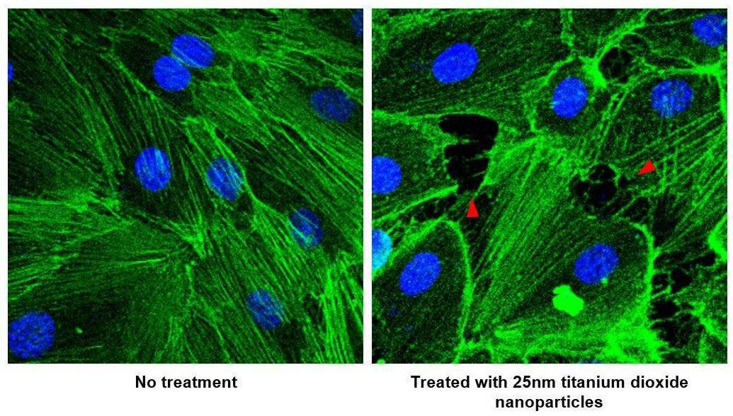Ученые определили новую причину развития и прогрессирования раковых опухолей