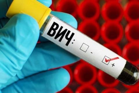 Ученые выяснили, как можно полностью остановить ВИЧ