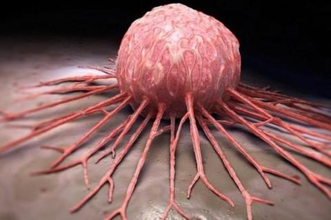 Найдено неожиданное средство для борьбы с раком