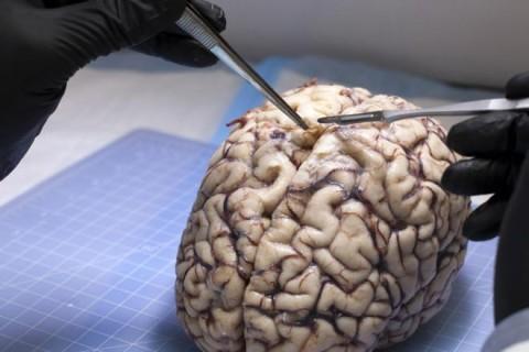 Гарвардские ученые нашли окаменелый мозг возрастом более 500 млн лет