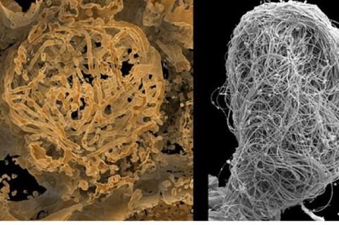 Ученые нашли самую древнюю в мире сперму