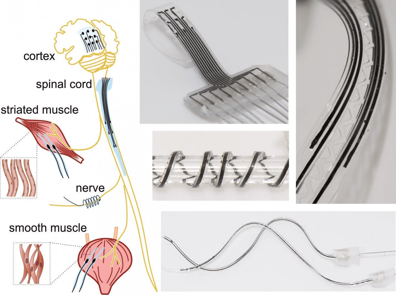 Ученые создают на 3D-принтере импланты для лечения травм спинного мозга