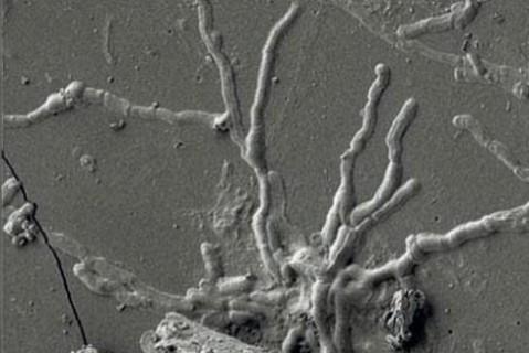 Итальянские ученые нашли часть мозга человека, который погиб во время древнего извержения Везувия